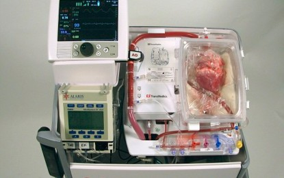 'Dead hearts' Transplanted into Living Patients in Surgical Breakthrough