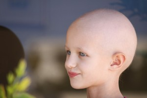 Portrait of a caucasian child suffering hair loss due to chemotherapy treatment to cure cancer.