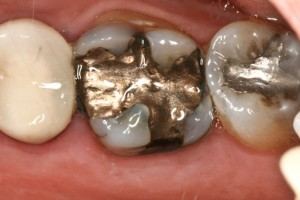 Dental fillings with mercury