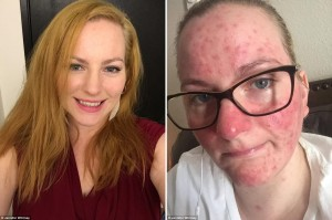 Mother claims - Jennifer Whitney before and after flu shot