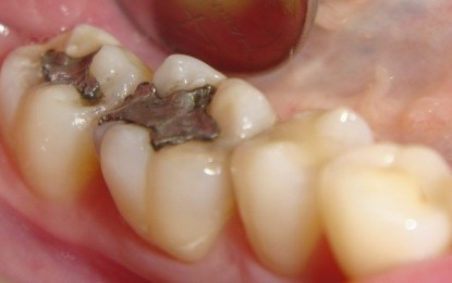 """Mercury poisoning: Over 100 ways """"silver"""" dental fillings can destroy your health"""