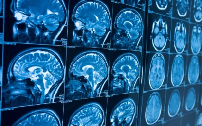 FAILED amyloid plaque theory: Scientists dumbfounded over Alzheimer's disease after 20 years of research